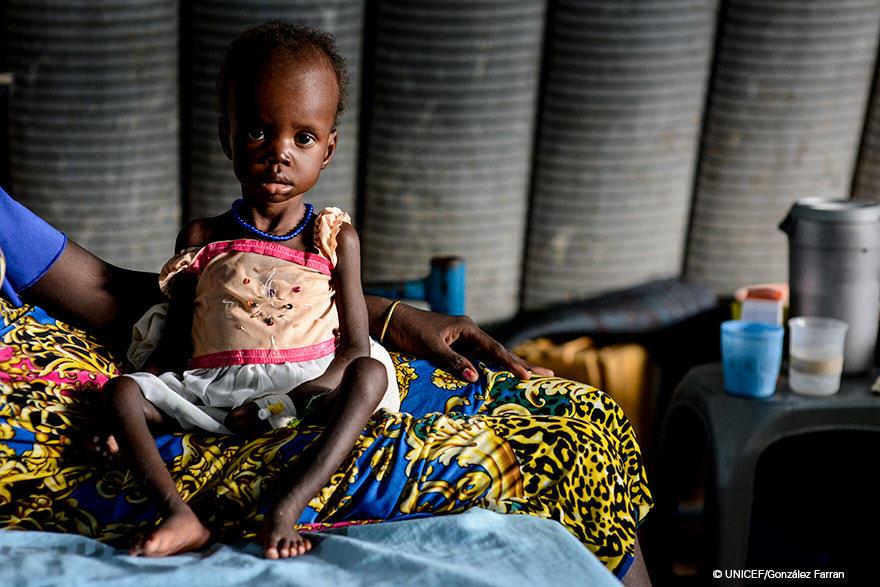 Hambruna en Sudán del Sur